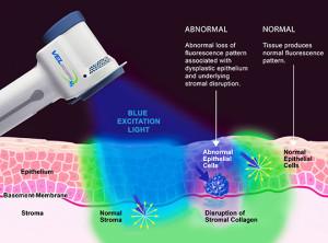 tissue-fluorescence-visualization