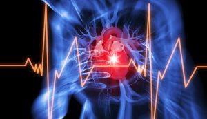 morte-improvvisa-arresto-cardiaco